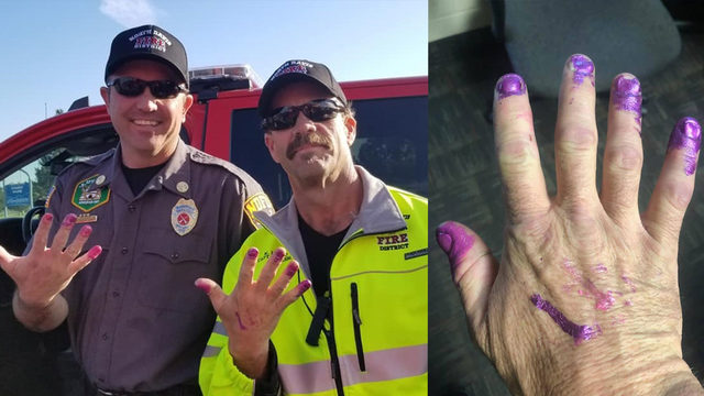 Firefighters let little girl paint their nails to help her calm down…